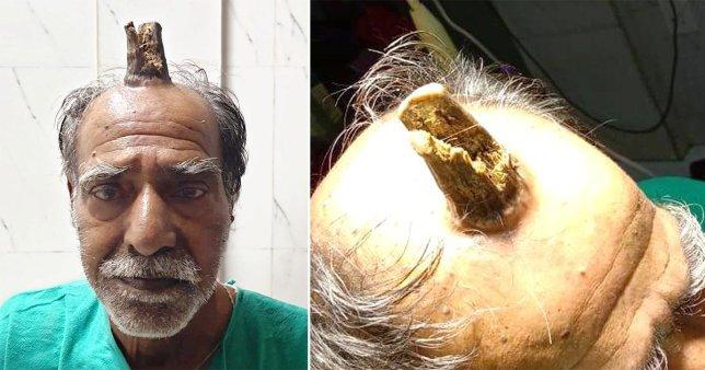 74-vjeçari operon 'bririn' që i ishte rritur në kokë