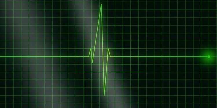 Zemra i kishte pushuar prej 6 orësh, mjekët rikthejnë në jetë gruan